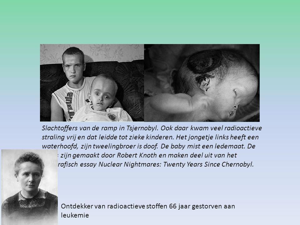 Slachtoffers van de ramp in Tsjernobyl. Ook daar kwam veel radioactieve straling vrij en dat leidde tot zieke kinderen. Het jongetje links heeft een w
