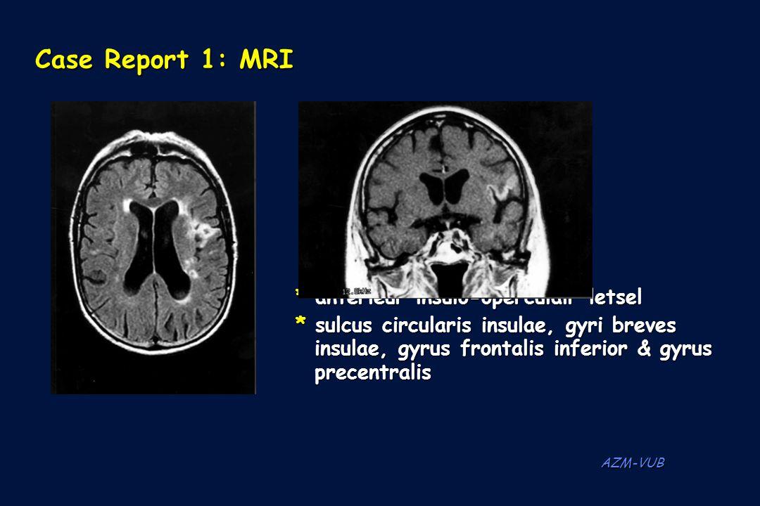 AZM-VUB Case Report 1: MRI * anterieur insulo-operculair letsel * sulcus circularis insulae, gyri breves insulae, gyrus frontalis inferior & gyrus ins