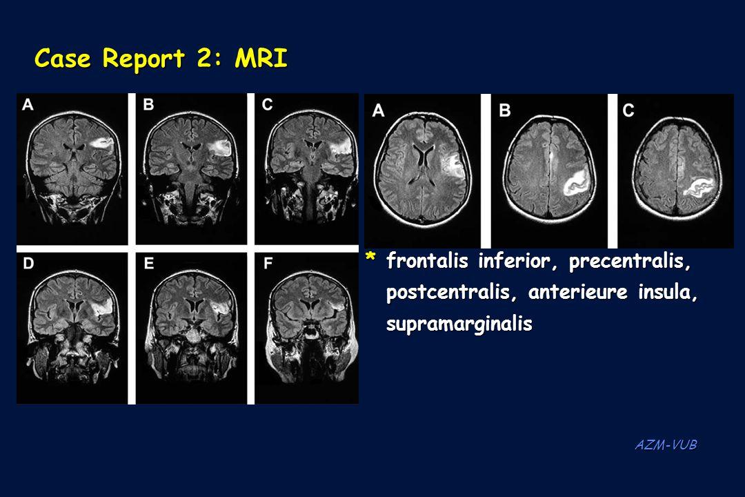 Case Report 2: MRI *frontalis inferior, precentralis, postcentralis, anterieure insula, supramarginalis AZM-VUB