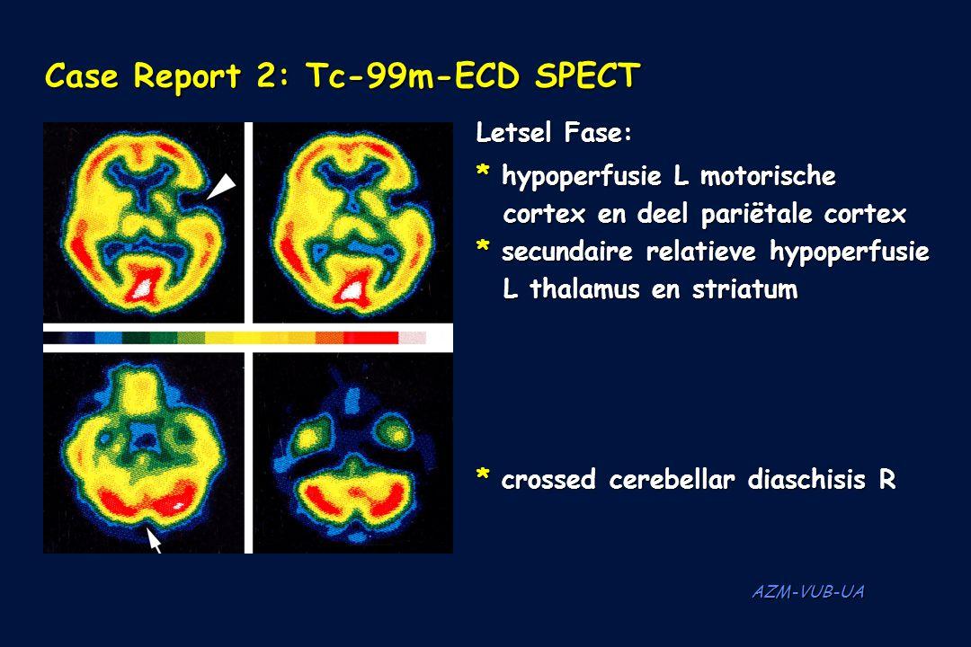 AZM-VUB-UA Case Report 2: Tc-99m-ECD SPECT Letsel Fase: * hypoperfusie L motorische cortex en deel pariëtale cortex * secundaire relatieve hypoperfusi