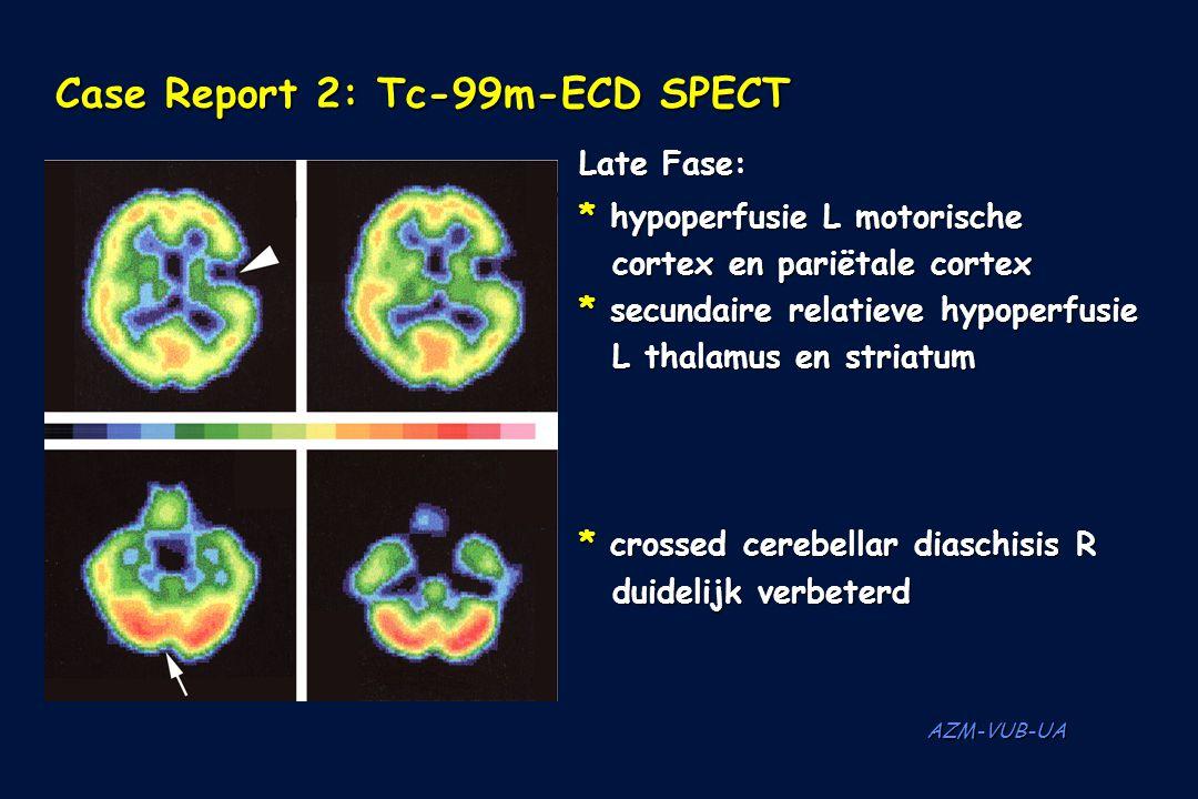 AZM-VUB-UA Case Report 2: Tc-99m-ECD SPECT Late Fase: * hypoperfusie L motorische cortex en pariëtale cortex * secundaire relatieve hypoperfusie L tha