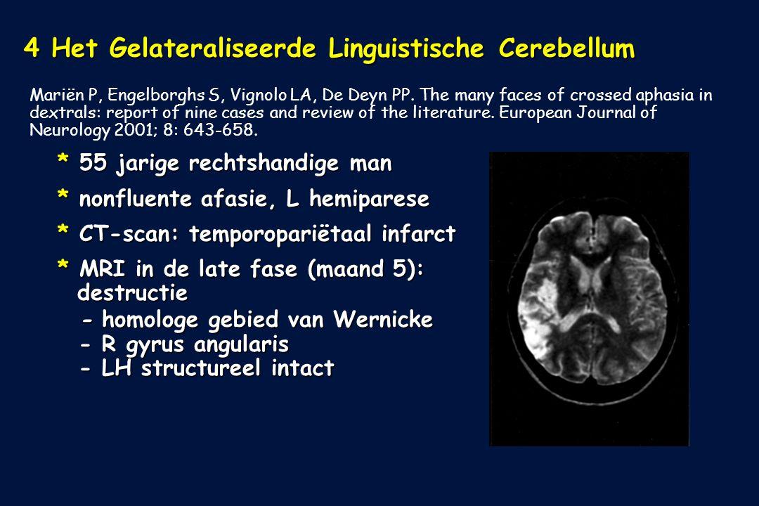 4 Het Gelateraliseerde Linguistische Cerebellum Mariën P, Engelborghs S, Vignolo LA, De Deyn PP. The many faces of crossed aphasia in dextrals: report