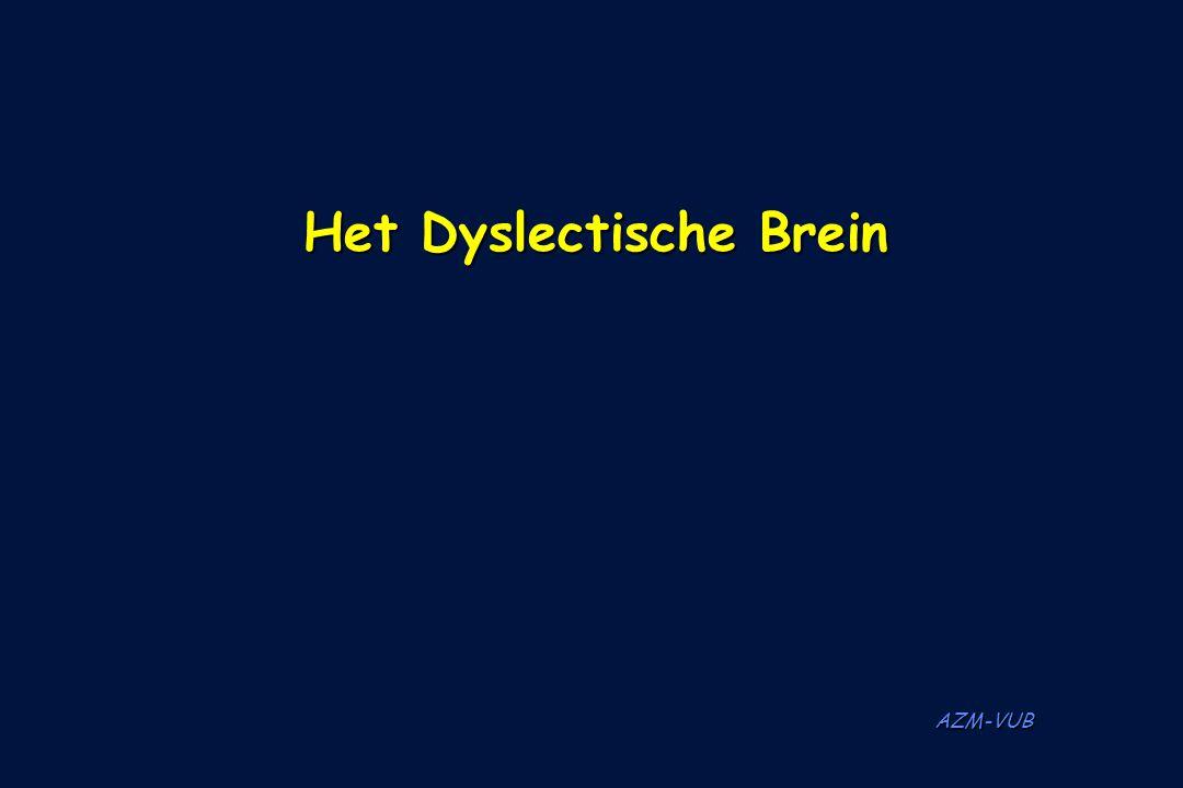 AZM-VUB Het Dyslectische Brein