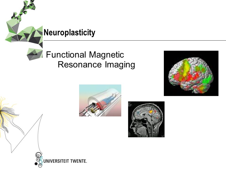 Neuroplasticity Functional Magnetic Resonance Imaging