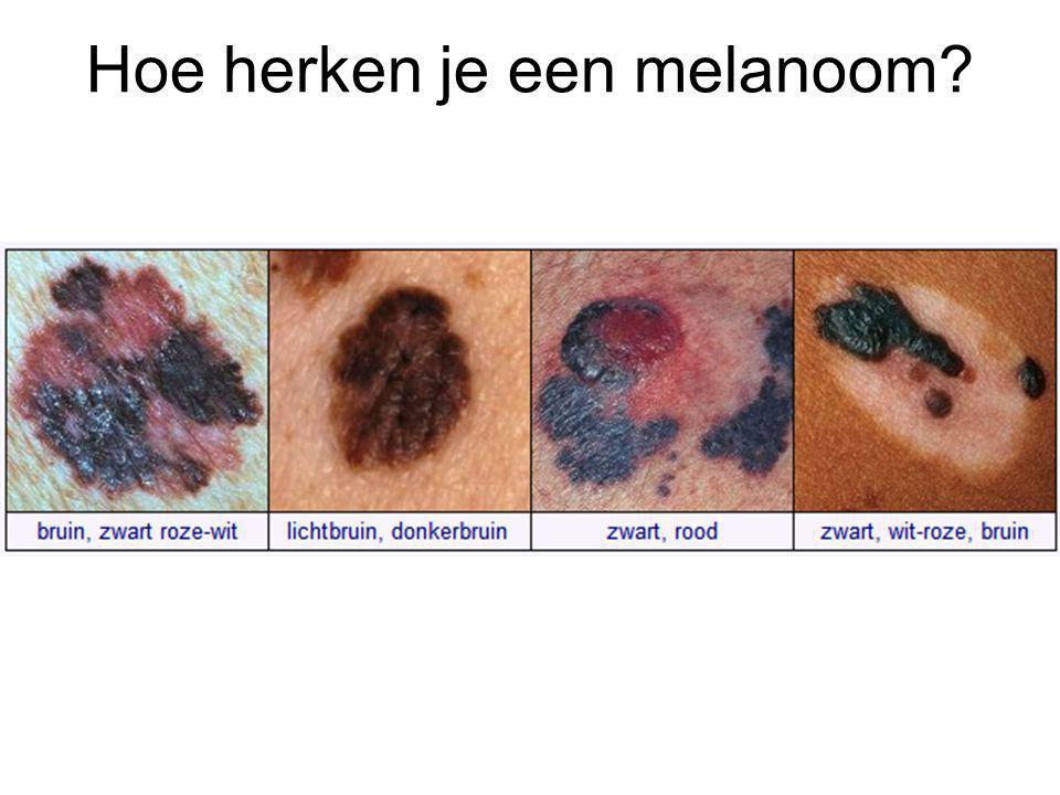 Hoe herken je een melanoom?