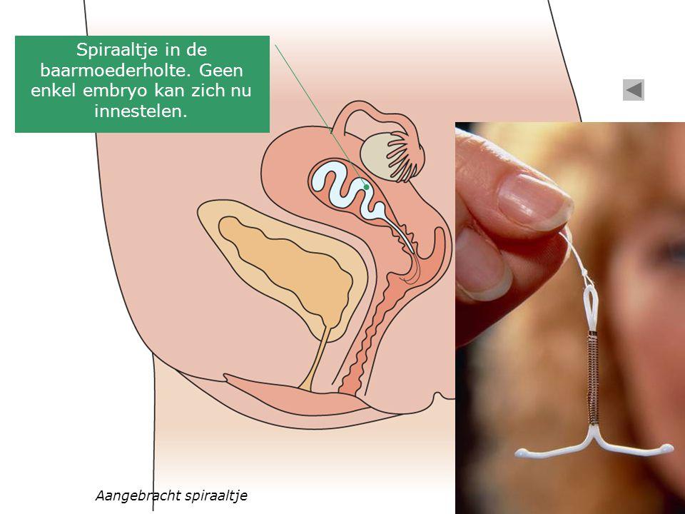 Aangebracht spiraaltje Spiraaltje in de baarmoederholte. Geen enkel embryo kan zich nu innestelen.