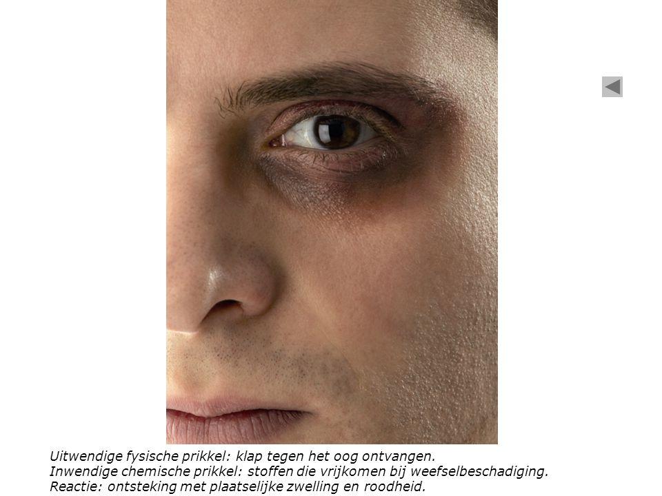 Het oor Het oog Uitwendige fysische prikkel: klap tegen het oog ontvangen.
