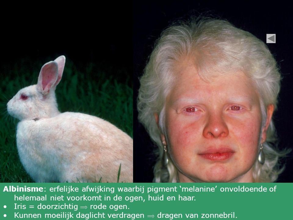 Albinisme: erfelijke afwijking waarbij pigment 'melanine' onvoldoende of helemaal niet voorkomt in de ogen, huid en haar.