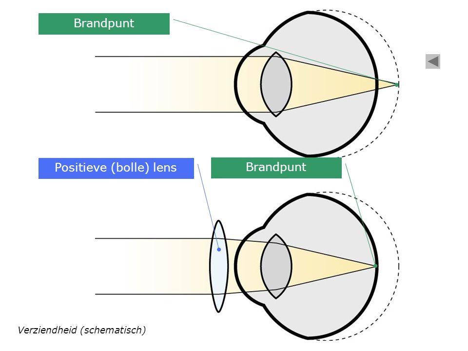 Verziendheid (schematisch) Positieve (bolle) lens Brandpunt