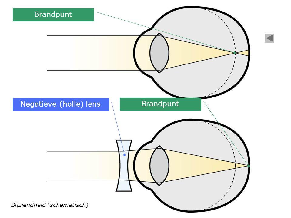 Negatieve (holle) lens Brandpunt Bijziendheid (schematisch)