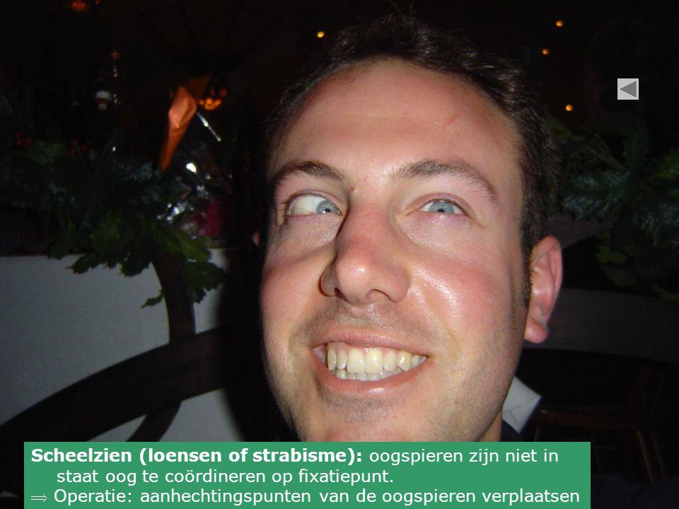 Scheelzien (loensen of strabisme): oogspieren zijn niet in staat oog te coördineren op fixatiepunt.  Operatie: aanhechtingspunten van de oogspieren v
