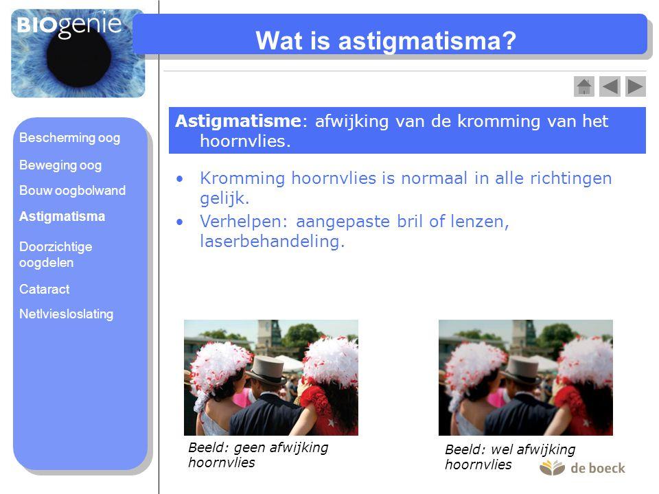 Wat is astigmatisma? Astigmatisme: afwijking van de kromming van het hoornvlies. Kromming hoornvlies is normaal in alle richtingen gelijk. Verhelpen: