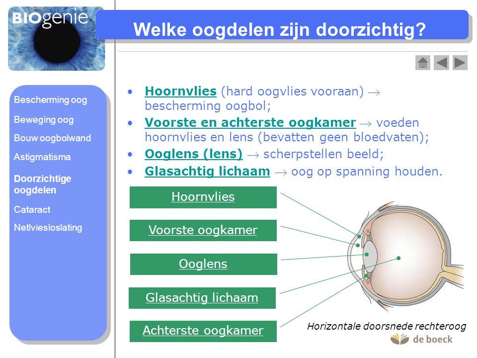 Vooraanzicht van oog met cataract Beeld: gezonde ooglens Beeld: ooglens met cataract
