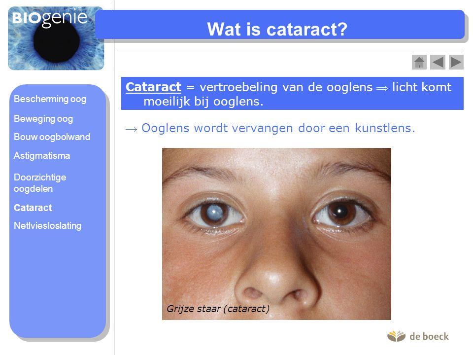 Wat is cataract? Cataract = vertroebeling van de ooglens  licht komt moeilijk bij ooglens.  Ooglens wordt vervangen door een kunstlens. Grijze staar