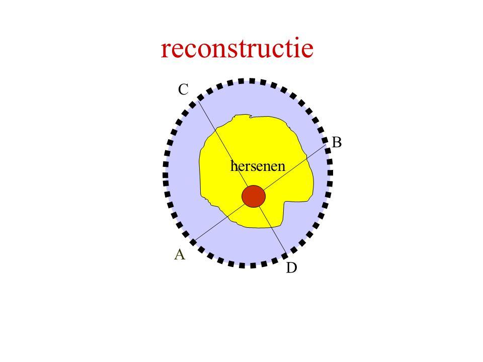 hersenen A B C D reconstructie