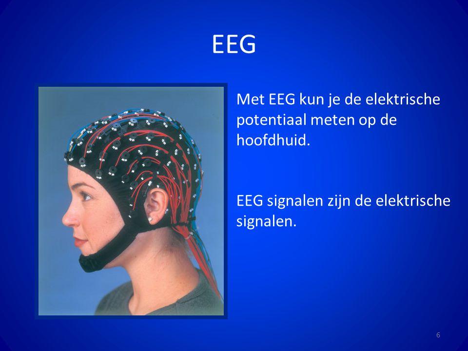 EEG 6 Met EEG kun je de elektrische potentiaal meten op de hoofdhuid. EEG signalen zijn de elektrische signalen.