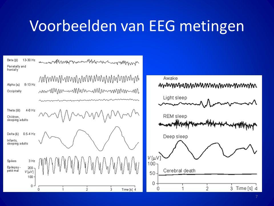 Voorbeelden van EEG metingen 7