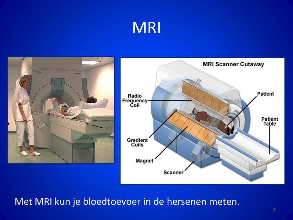 MRI 8 Met MRI kun je bloedtoevoer in de hersenen meten.