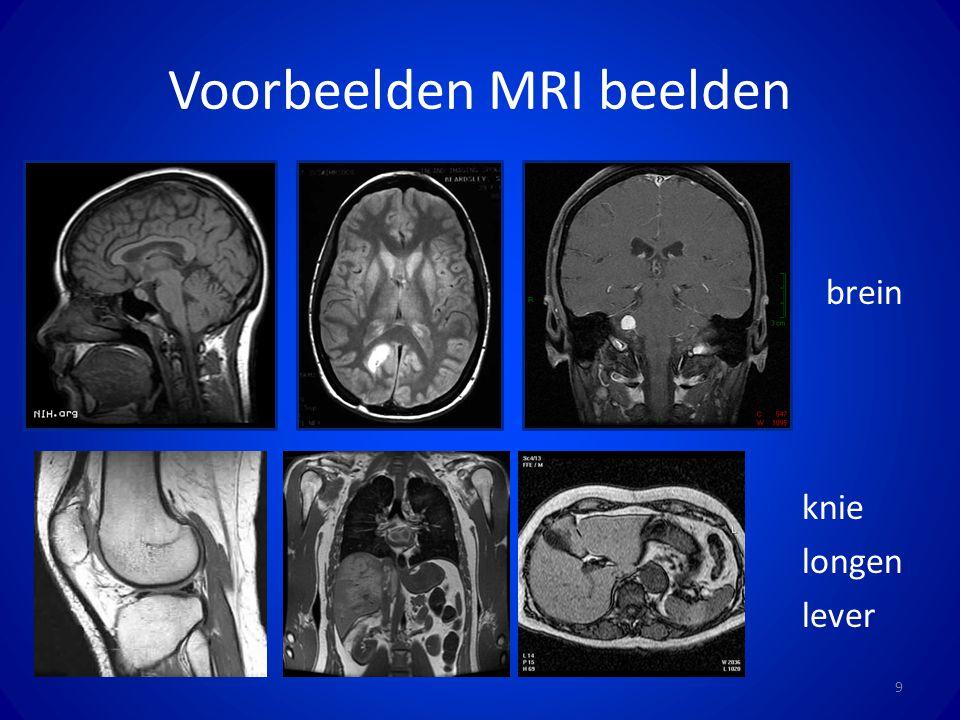 Voorbeelden MRI beelden 9 f brein f knie f longen f lever