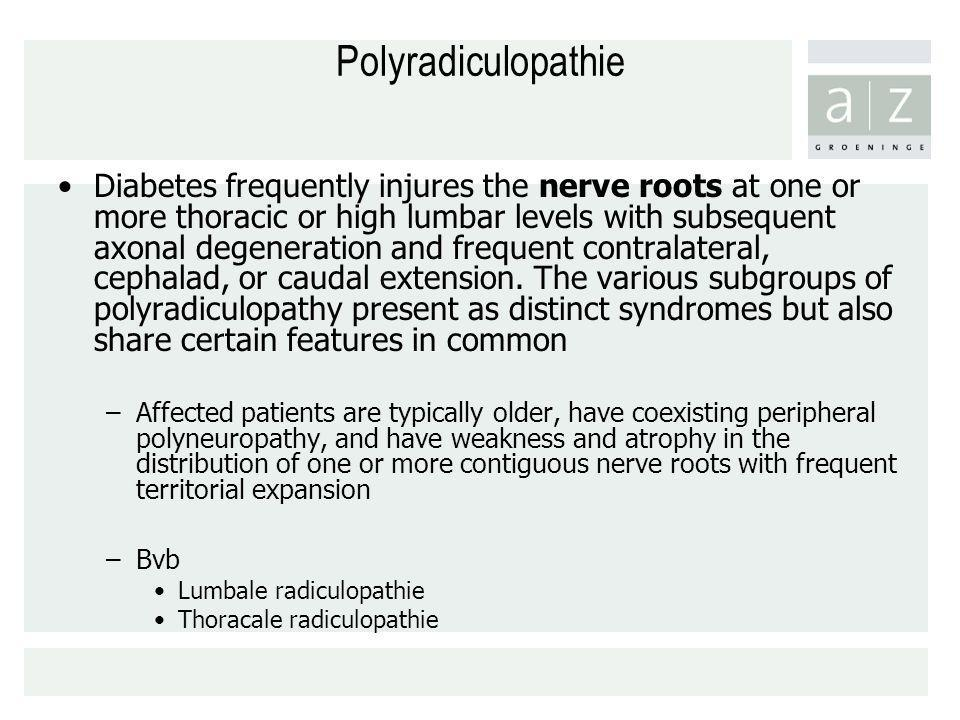 Polyradiculopathie Diabetes frequently injures the nerve roots at one or more thoracic or high lumbar levels with subsequent axonal degeneration and f