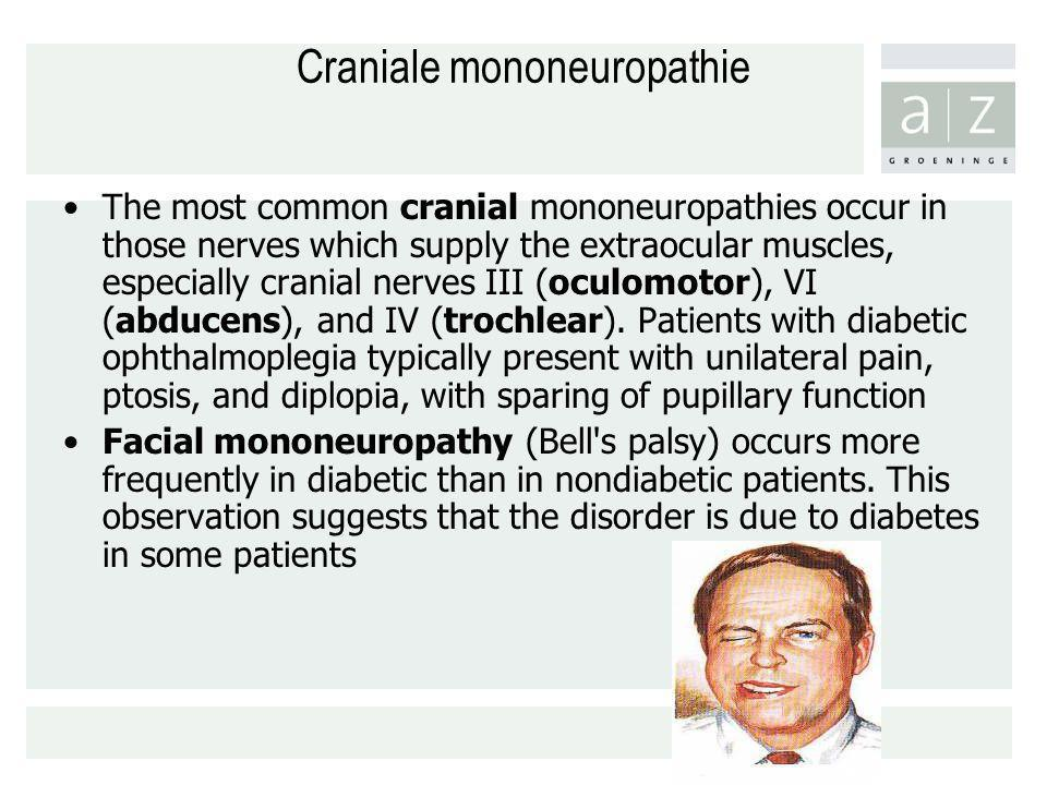 Craniale mononeuropathie The most common cranial mononeuropathies occur in those nerves which supply the extraocular muscles, especially cranial nerve