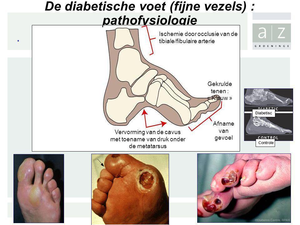 D De diabetische voet (fijne vezels) : pathofysiologie Ischemie door occlusie van de tibiale/fibulaire arterie Gekrulde tenen : « Klauw » Afname van g
