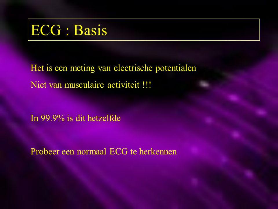 ECG : Basis Het is een meting van electrische potentialen Niet van musculaire activiteit !!! In 99.9% is dit hetzelfde Probeer een normaal ECG te herk