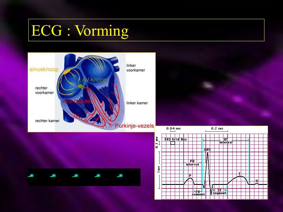 ECG : Vorming