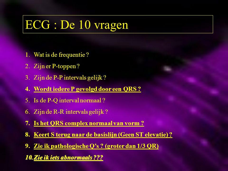 ECG : De 10 vragen 1.Wat is de frequentie ? 2.Zijn er P-toppen ? 3.Zijn de P-P intervals gelijk ? 4.Wordt iedere P gevolgd door een QRS ? 5.Is de P-Q