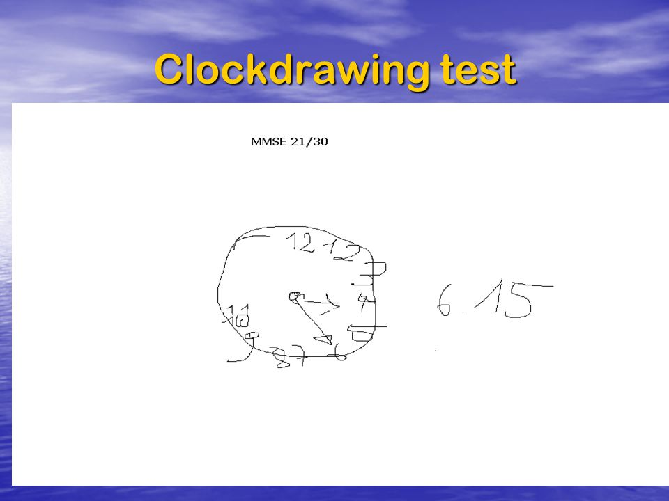 Clockdrawing test