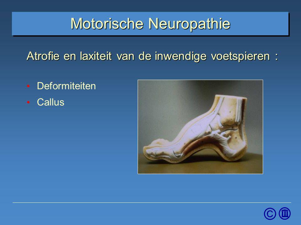 © Atrofie en laxiteit van de inwendige voetspieren : Deformiteiten Callus Motorische Neuropathie