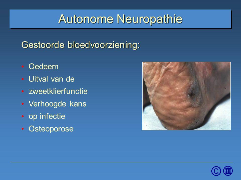 © Autonome Neuropathie Gestoorde bloedvoorziening: Oedeem Uitval van de zweetklierfunctie Verhoogde kans op infectie Osteoporose