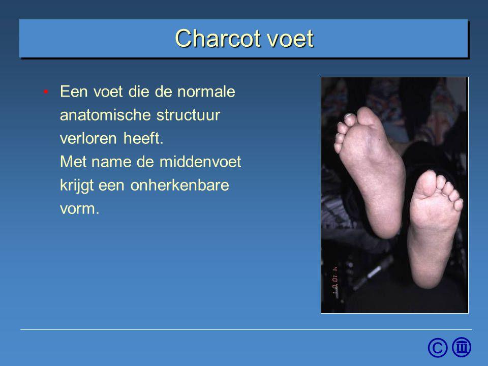 © Charcot voet Een voet die de normale anatomische structuur verloren heeft. Met name de middenvoet krijgt een onherkenbare vorm.