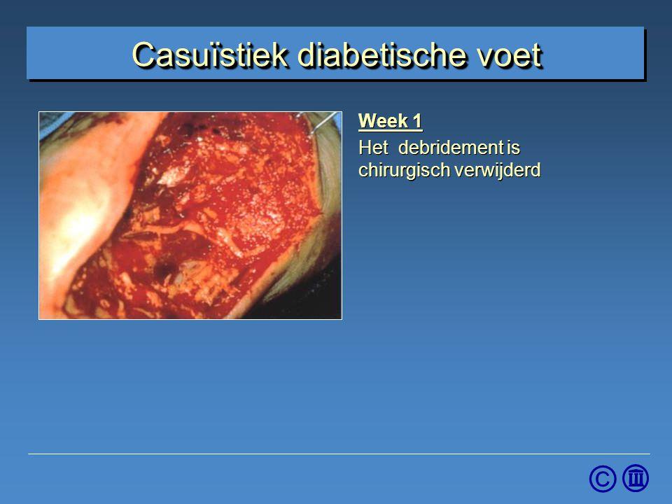 © Week 1 Het debridement is chirurgisch verwijderd Week 1 Het debridement is chirurgisch verwijderd Casuïstiek diabetische voet