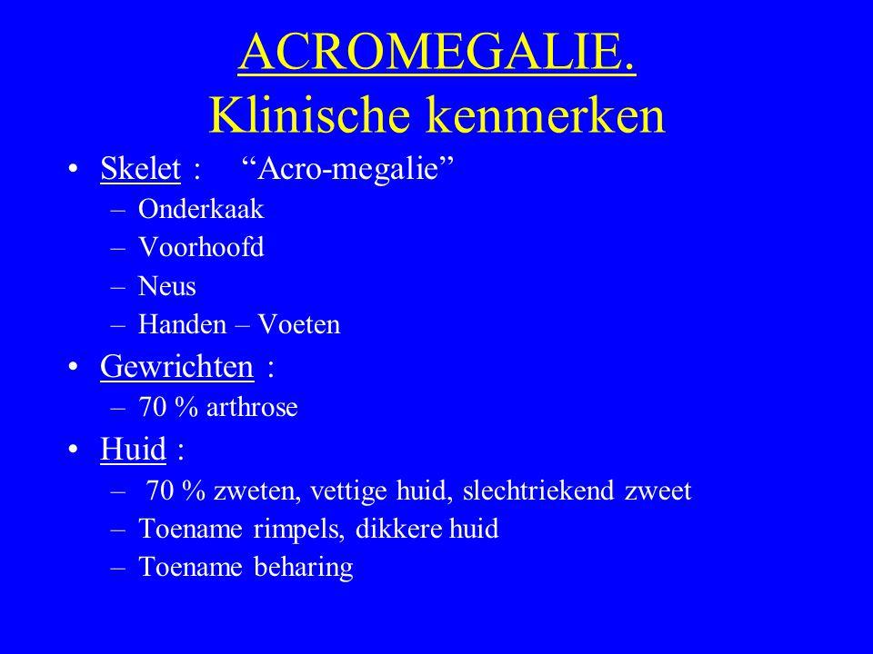"""ACROMEGALIE. Klinische kenmerken Skelet :""""Acro-megalie"""" –Onderkaak –Voorhoofd –Neus –Handen – Voeten Gewrichten : –70 % arthrose Huid : – 70 % zweten,"""