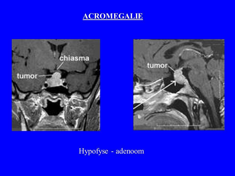 ACROMEGALIE Hypofyse - adenoom