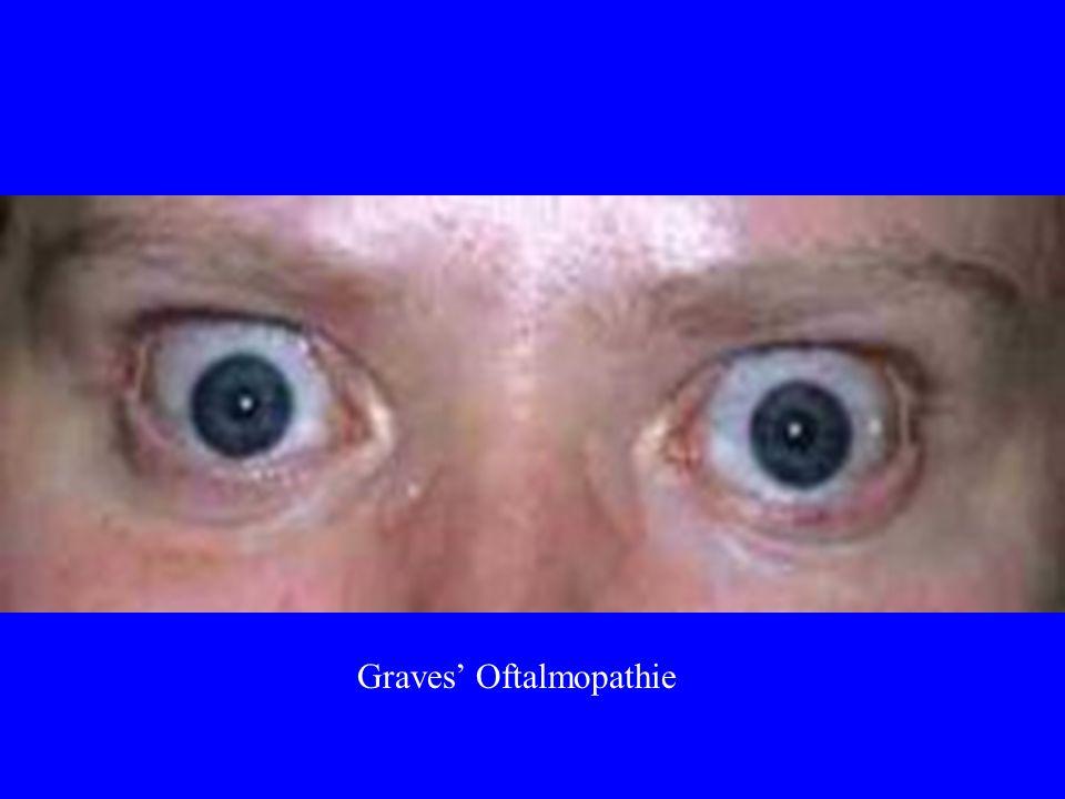 Graves' Oftalmopathie