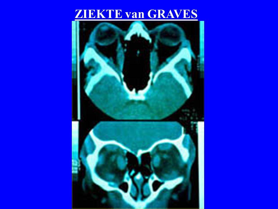 ZIEKTE van GRAVES