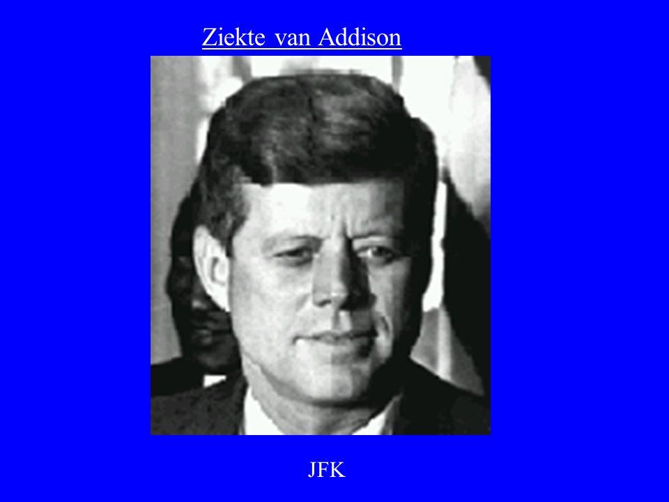 JFK Ziekte van Addison