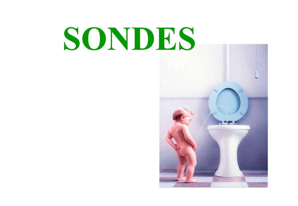SONDES