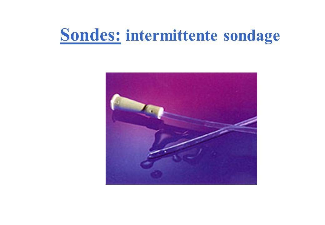 Sondes: intermittente sondage