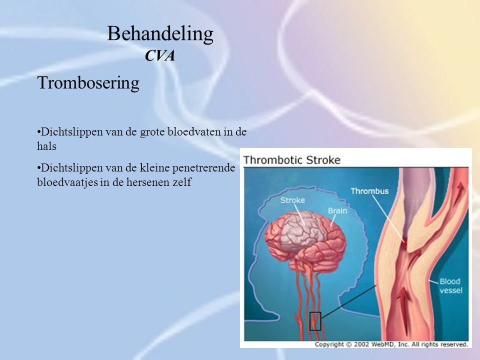 Behandeling CVA Trombosering Dichtslippen van de grote bloedvaten in de hals Dichtslippen van de kleine penetrerende bloedvaatjes in de hersenen zelf
