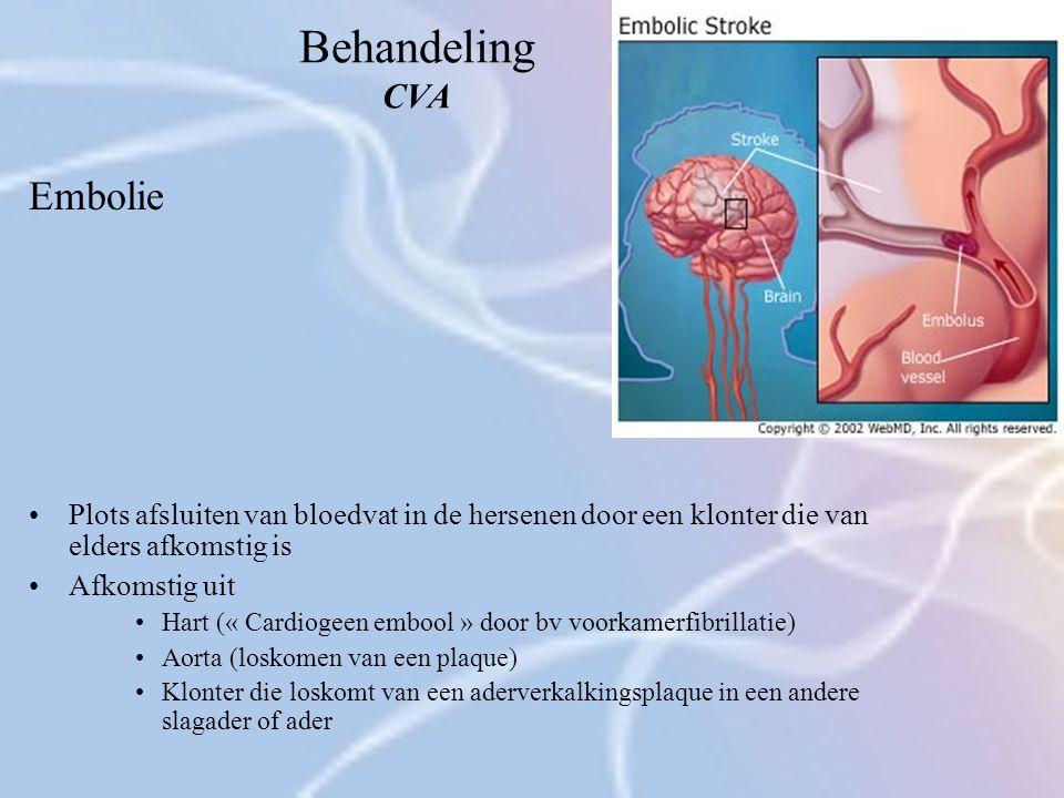 Behandeling CVA Embolie Plots afsluiten van bloedvat in de hersenen door een klonter die van elders afkomstig is Afkomstig uit Hart (« Cardiogeen embo