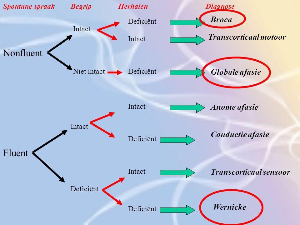Nonfluent Intact Niet intact Deficiënt Intact Deficiënt Broca Transcorticaal motoor Globale afasie Fluent Intact Deficiënt Anome afasie Conductie afas