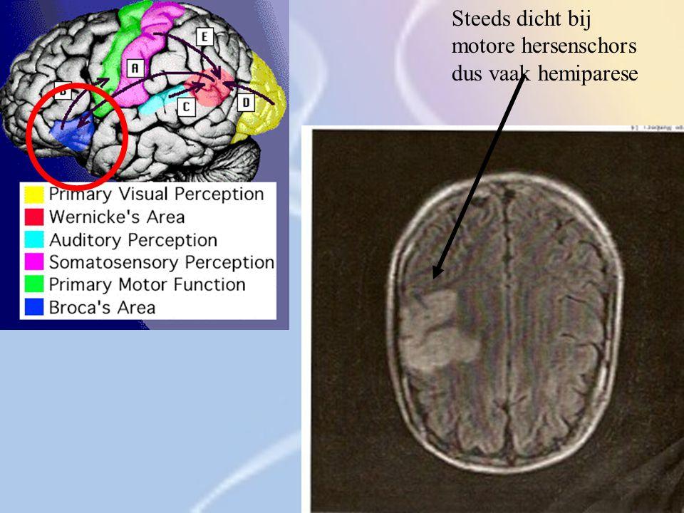Steeds dicht bij motore hersenschors dus vaak hemiparese