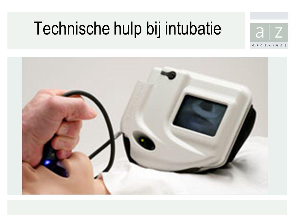 Technische hulp bij intubatie