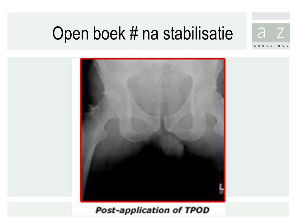 Open boek # na stabilisatie
