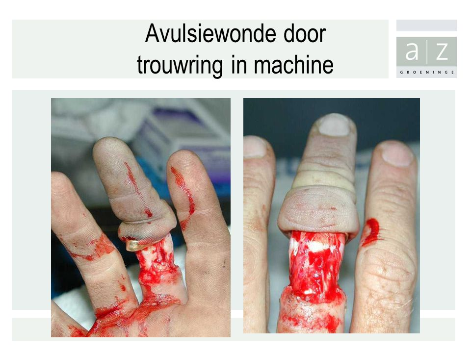 Avulsiewonde door trouwring in machine