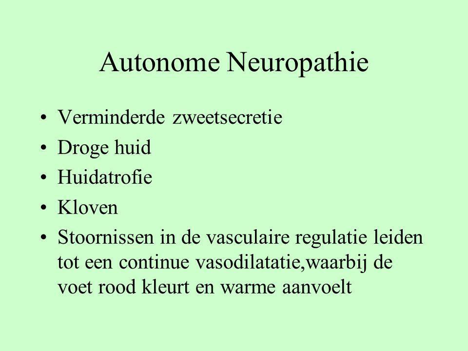 Autonome Neuropathie Verminderde zweetsecretie Droge huid Huidatrofie Kloven Stoornissen in de vasculaire regulatie leiden tot een continue vasodilata