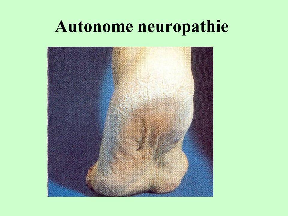 Autonome neuropathie